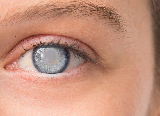 Eye with cataracts due to diabetes